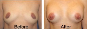underarm breast augmentation before and after