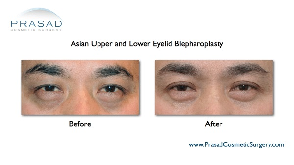 asian upper and lower blepharoplasty