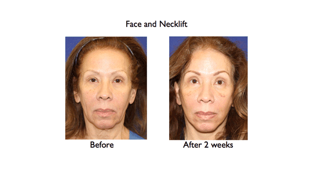 deep plane face and necklift before and after 2 weeks