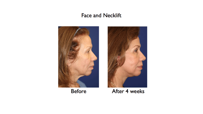 deep plane face and necklift before and after 4 weeks