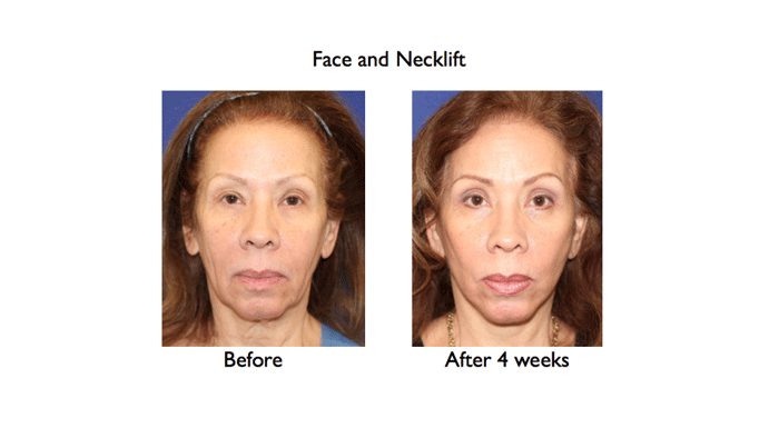 deep plane face and necklift before and after 4 weeks full face