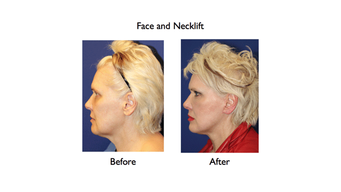 deep plane facelift before and after left profile