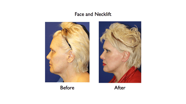 deep plane facelift before and after