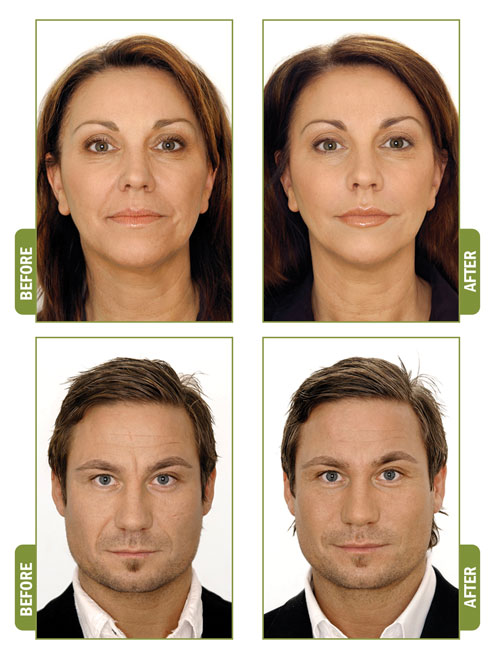 Natural Dermal Fillers Using Platelet Rich Plasma Prp