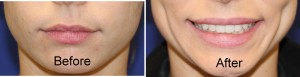 dimple creation surgery before and after