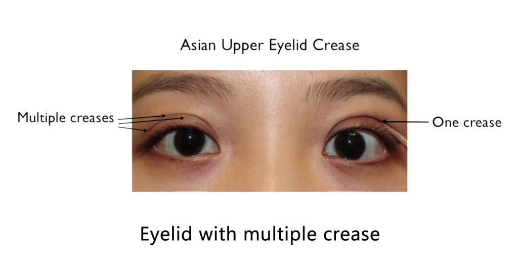 eyelid with multiple crease