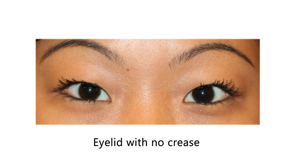 eyelid with no crease