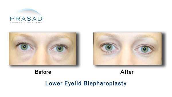 lower eyelid blepharoplasty surgery