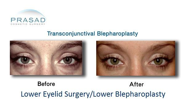 Transconjunctival Blepharoplasty - Before and After surgery