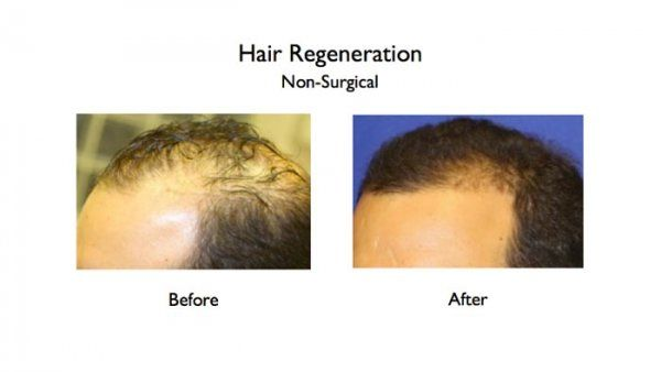 acell prp treatment for hair loss