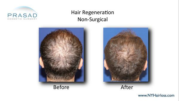 hair regeneration before and after
