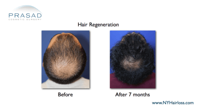 Hair Regeneration for male pattern hairloss