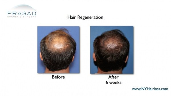 hair transplant nyc-hair loss solutions