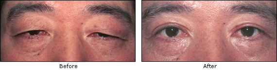 Upper Eyelids Surgery Before and After