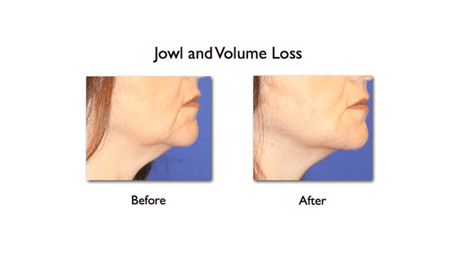 lower face enhancement of mandibular notch and mesolabial fold