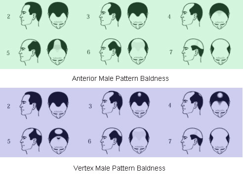 Male Pattern Baldness Scale