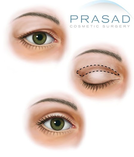 prasad FIGURE 6 3 upper bleph watermarked 600w Upper Eyelift Surgery