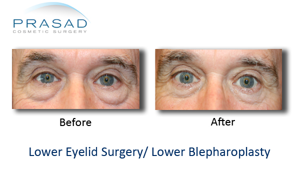 lower eyelid surgery before and after