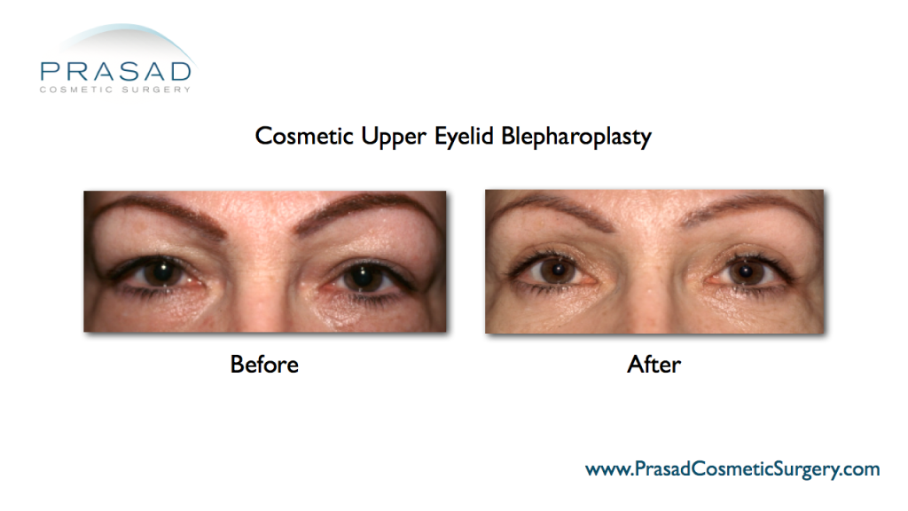 upper eyelid surgery performed by Dr Amiya Prasad - New York and Garden City Long Island