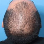 hair regeneration treatment on male in 20s
