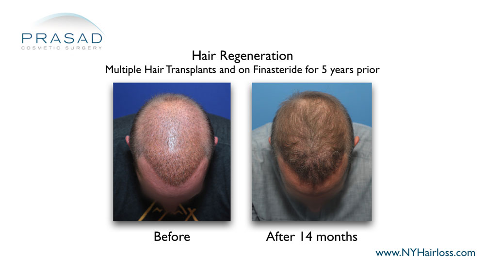 before and 14 months after Hair Regeneration thickened the thinning hair of the male patient