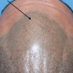 hair loss after scalp micropigmentation