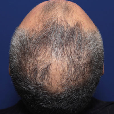 Treating-late-onset-pattern-hair-loss-without-finasteride