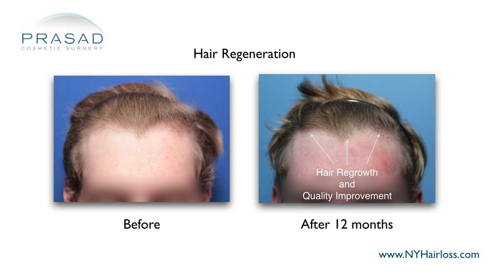 hair regrowth 12 months after one time hair regeneration treatment