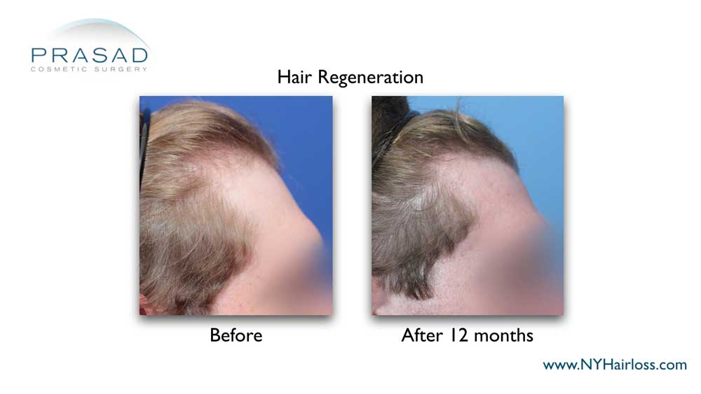 before and 12 months after hair regeneration treatment. Hair growth at the temple is noticeable on the after photo. Male patient right side view