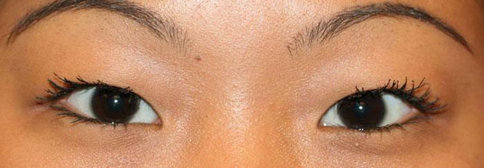 Asian female eyelid with no crease