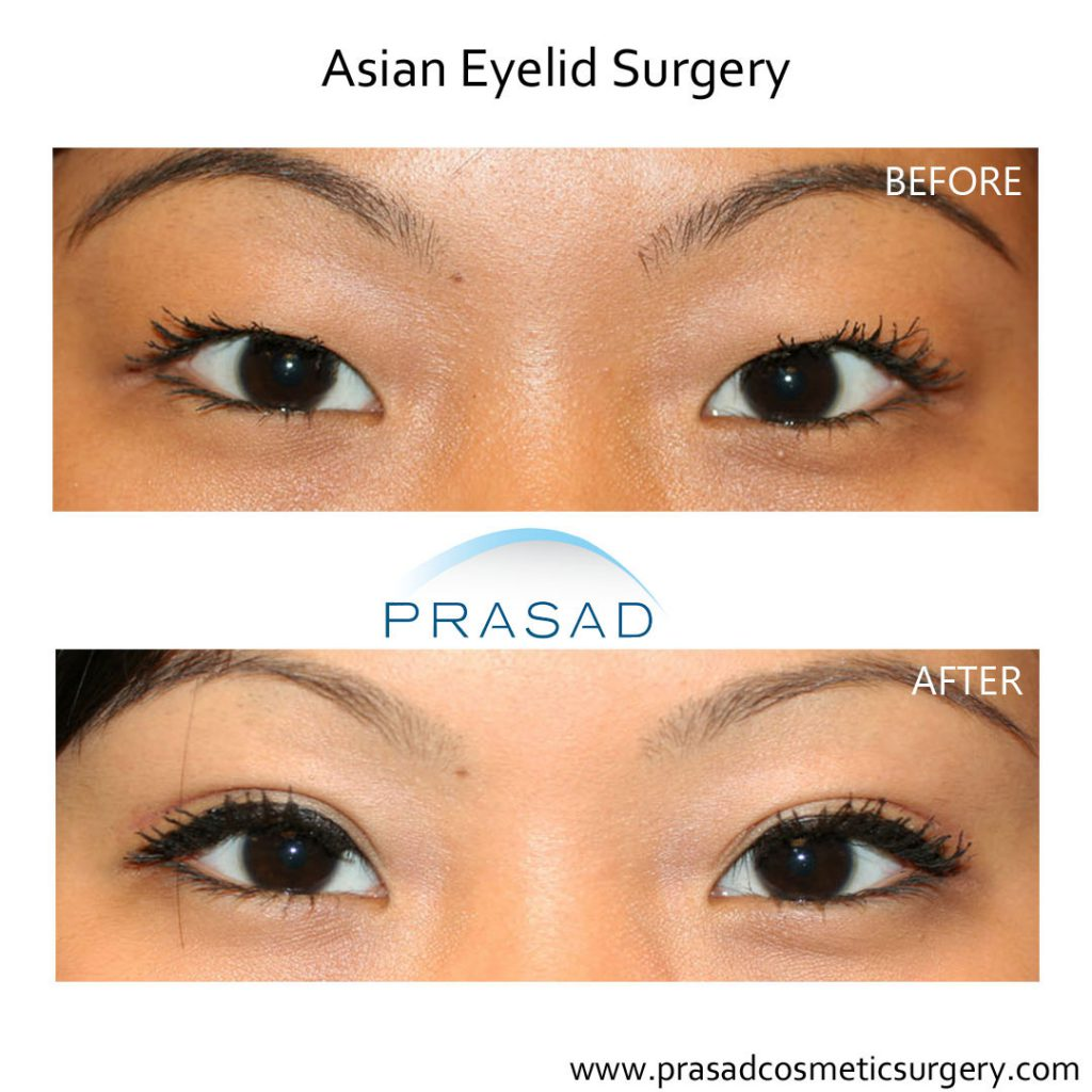 asian eyelid surgery patient before and after results