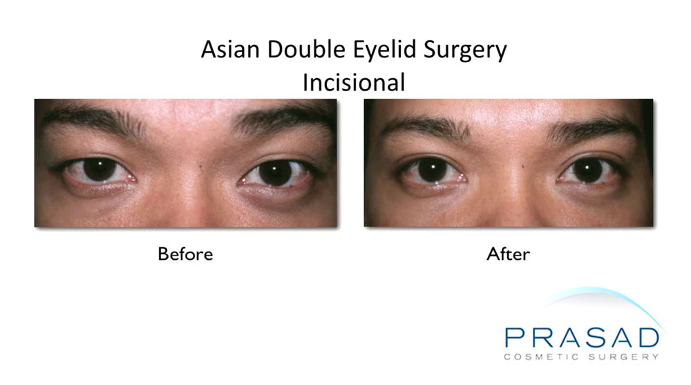before and after Asian double eyelid surgery using Incisional procedure technique