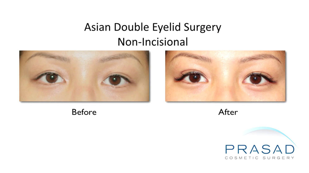 before and after non-incisional double eyelid surgery performed on female patient