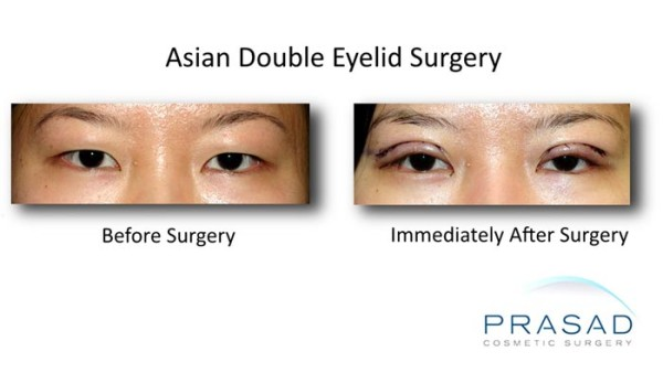 korean double eyelid surgery before and immediately after surgery photo
