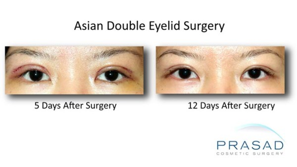 korean double eyelid surgery before and 2 weeks after recovery photo