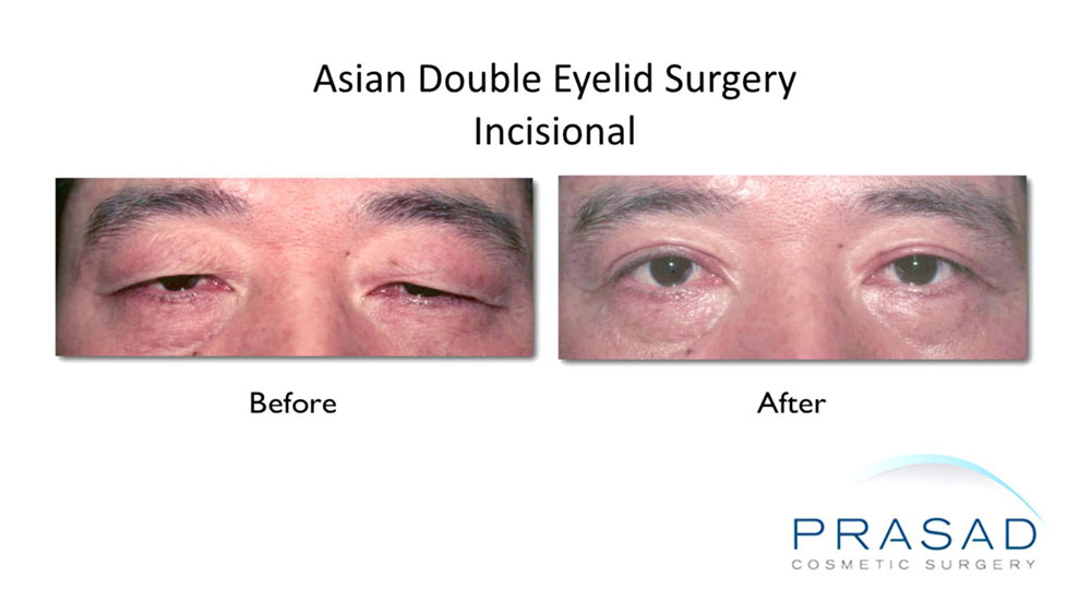 incisional double eyelid surgery performed on male patient, before and after results