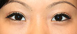 after double eyelid surgery