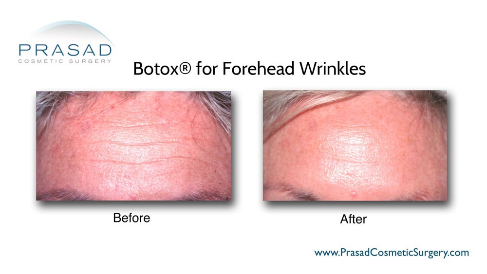 before and after Botox forehead injection