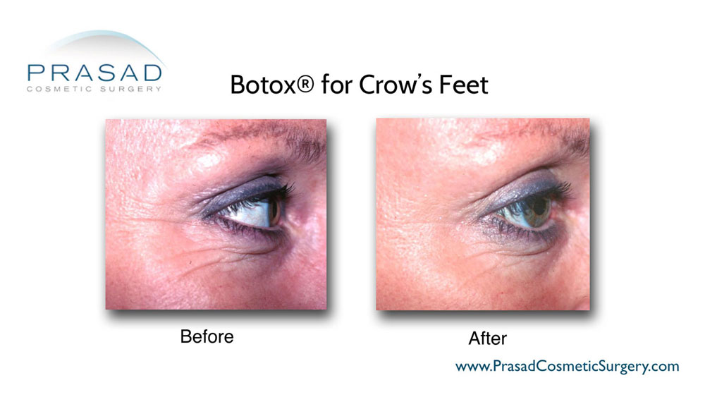 before and after Botox injection for Crow's Feet - female patient right eye view