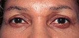 patient photo after dark circle treatment