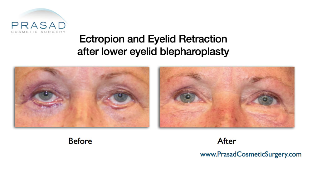 before and after eyelid retraction revision surgery - older female patient