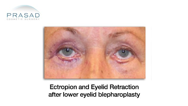Lower Eyelid Retraction example - younger female