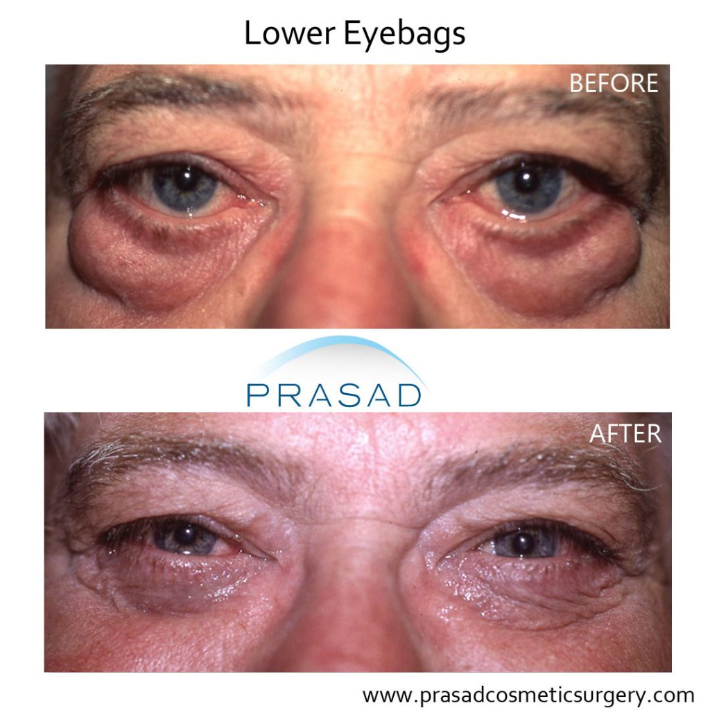 Before and After Eye bags surgery on male patient