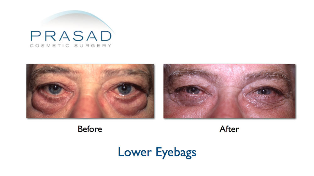 Before and After Eye bags surgery on older male patient