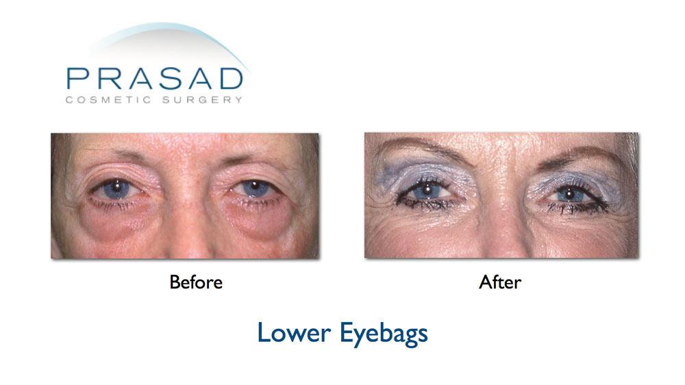 Before and After Eye bags surgery on older female patient