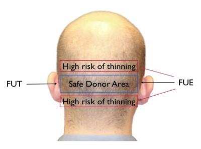 FUT vs FUE hair transplant