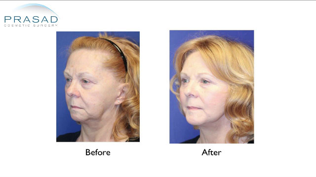 Face and Neck Lift patient Before and After surgery - three-quarter view