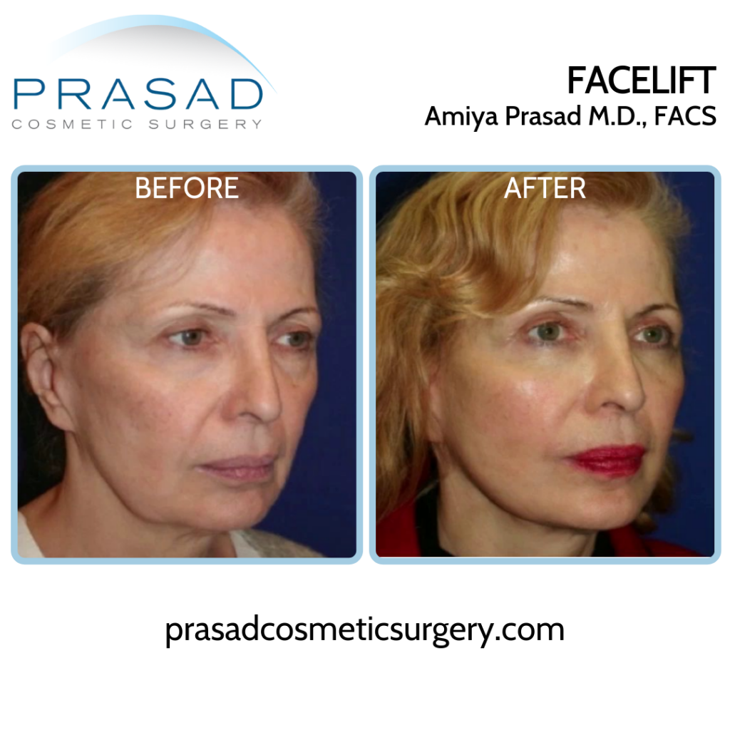 Facelift patient Before and After surgery