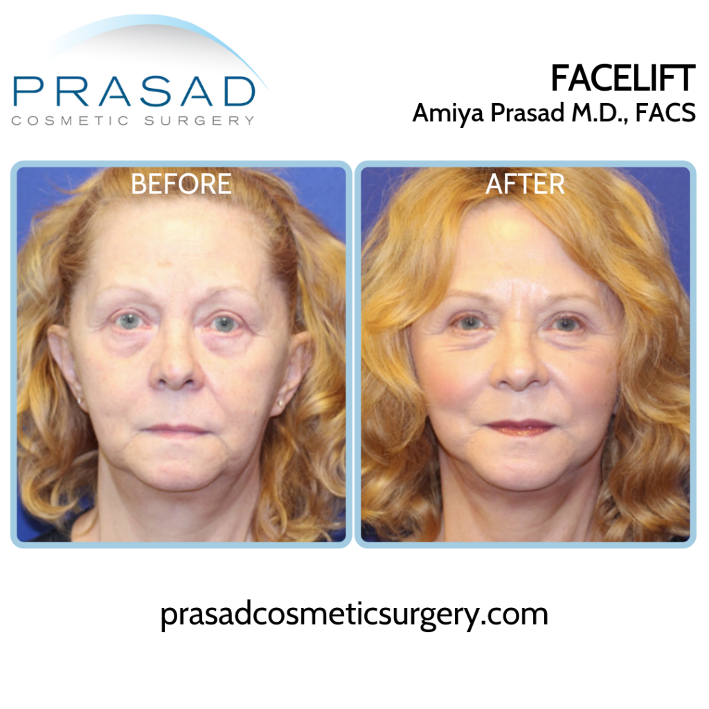 Facelift Patient Before and After surgery - Front view