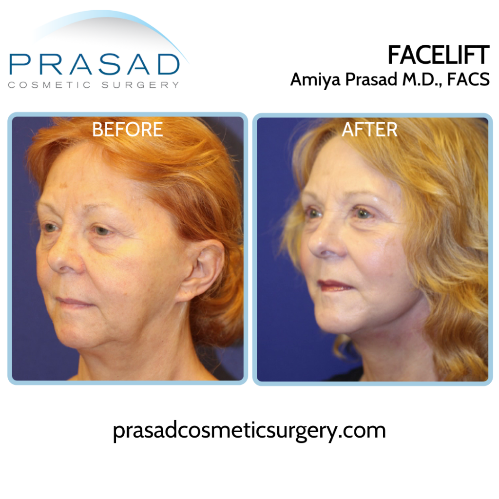 Facelift and neck lift Patient Before and After surgery - three-quarter view